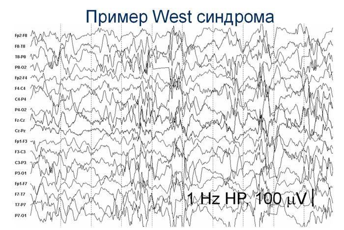 Пикнолепсия фото