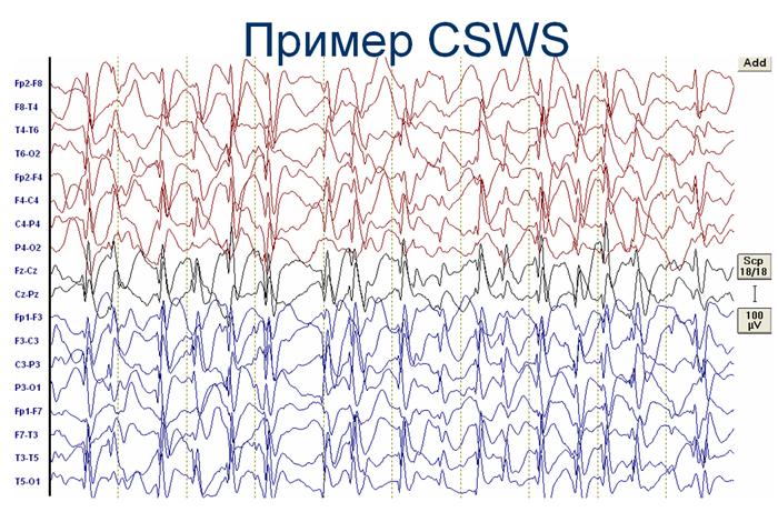 Пикнолепсия